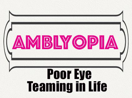 Amblyopia: Poor Eye Teaming in Life